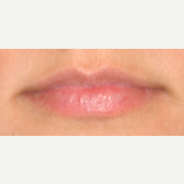 18-24 year old woman treated with Restylane Silk before 3092328