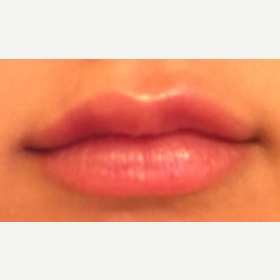 18-24 year old woman treated with Restylane Silk after 3092328