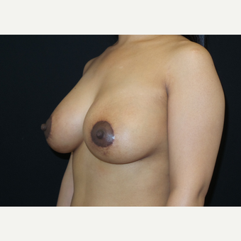 35-44 year old woman treated with Breast Lift with Implants after 3305232