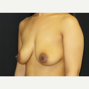 35-44 year old woman treated with Breast Lift with Implants before 3305232