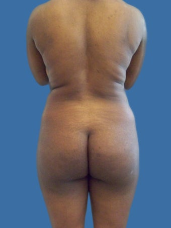 Butt Augmentation before 1209365