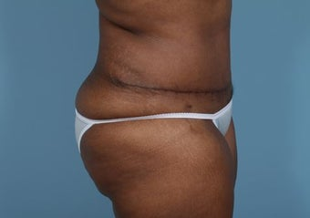 Abdominoplasty after 2320901