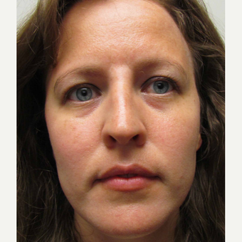 Non Surgical Nose Job for This 39 Year Old Woman after 3419761