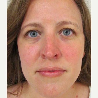 Non Surgical Nose Job for This 39 Year Old Woman before 3419761