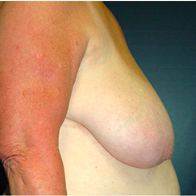 65 year old woman treated with Breast Lift before 3665855