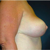 65 year old woman treated with Breast Lift after 3665855