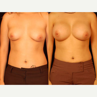 18-24 year old woman treated with Breast Augmentation before 3658600