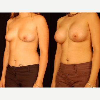 18-24 year old woman treated with Breast Augmentation after 3658600