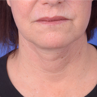 55-64 year old woman treated with Facelift after 2994468