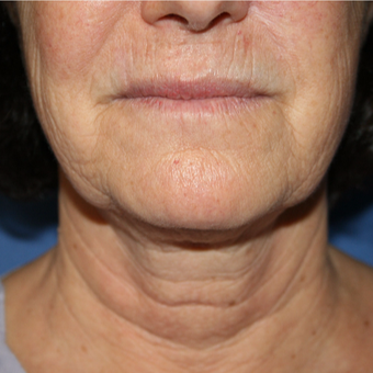 55-64 year old woman treated with Facelift before 2994468