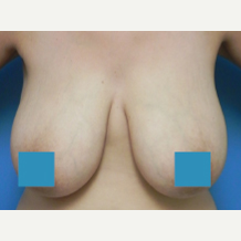 35-44 year old woman treated with Breast Lift before 3374856