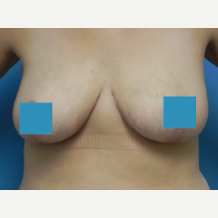 35-44 year old woman treated with Breast Lift after 3374856