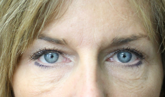 25-34 year old woman treated with Eyelid Surgery before 3741965