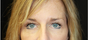 25-34 year old woman treated with Eyelid Surgery after 3741965