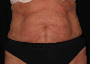 "73 Year old Slimlipo on abdomen and ""love handles"" 1253143"