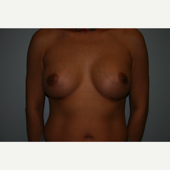 25-34 year old woman treated with Breast Augmentation after 3054296