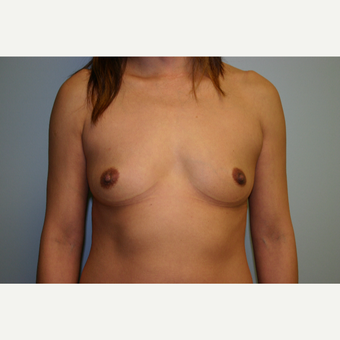 25-34 year old woman treated with Breast Augmentation before 3054296