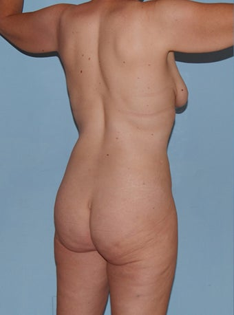 33 Year Old Female Body Lift 660094