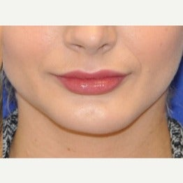 18-24 year old woman treated with Chin Implant after 2019062