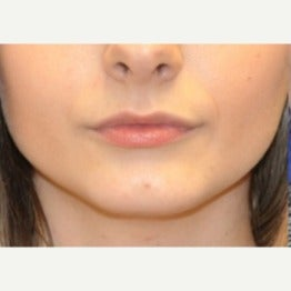 18-24 year old woman treated with Chin Implant before 2019062