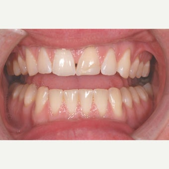 25-34 year old man treated with Dental Bonding before 1737731