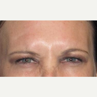 37 year old woman treated with Botox after 3026091