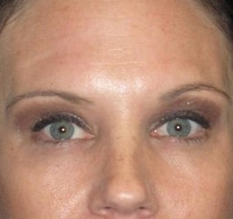 37 year old woman treated with Botox 3026091