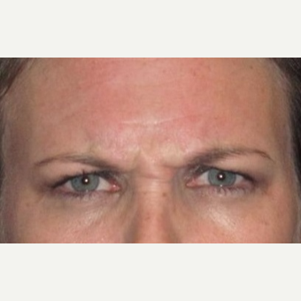 37 year old woman treated with Botox before 3026091