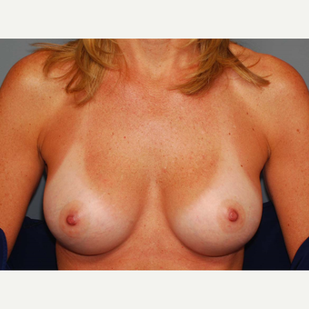 49 y/o Inframammary Sub Muscular Breast Augmentation after 3066235