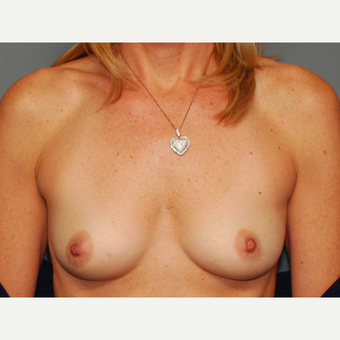 49 y/o Inframammary Sub Muscular Breast Augmentation before 3066235