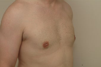 Adult male with gynecomastia (enlarged male breasts) after 1470891