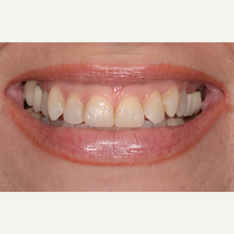 45-54 year old woman treated with Porcelain Veneers before 3732644