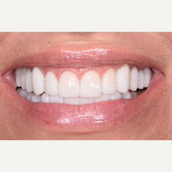 45-54 year old woman treated with Porcelain Veneers after 3732644