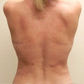 50 yr old woman treated with SmartLipo MPX after 2423006