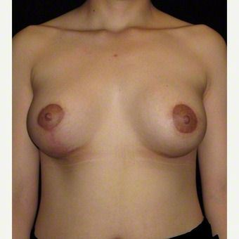 24 year old woman treated with Breast Augmentation for Asymmetry before 3103592