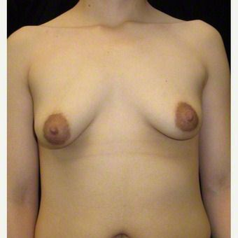 24 year old woman treated with Breast Augmentation for Asymmetry after 3103592