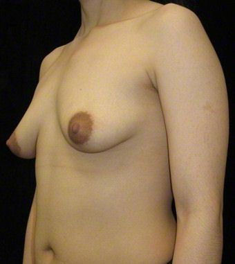 24 year old woman treated with Breast Augmentation for Asymmetry 3103592