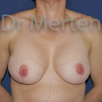 35-44 year old woman treated with Breast Lift with Implants after 3595322