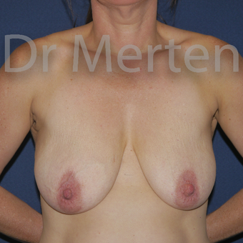 35-44 year old woman treated with Breast Lift with Implants before 3595322