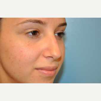 18-24 year old woman treated with Rhinoplasty before 3624825