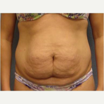 25-34 year old woman treated with Tummy Tuck before 3726336