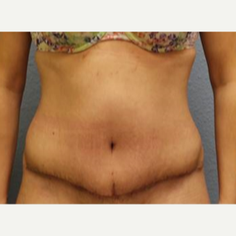 25-34 year old woman treated with Tummy Tuck after 3726336