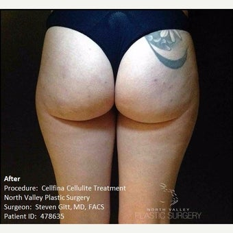 Cellfina Cellulite Treatment Photos in Young Woman after 2569089
