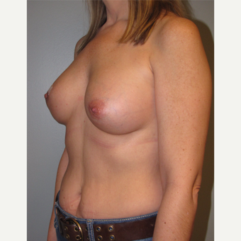 45-54 year old woman treated with Breast Reconstruction with Latissimus Flap before 3004100
