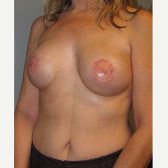 45-54 year old woman treated with Breast Reconstruction with Latissimus Flap after 3004100