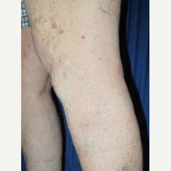65-74 year old woman treated with EVLT and Sclerotherapy