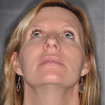 45-54 year old woman treated with Nose Surgery 6 weeks post-op