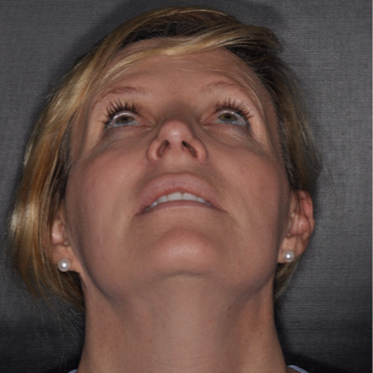 45-54 year old woman treated with Nose Surgery 6 weeks post-op after 2879118