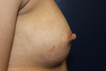 20 year old female with inverted right nipple 1051402