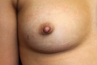 20 year old female with inverted right nipple after 1051402